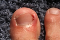 Why do Ingrown Toenails Develop?