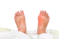 How Common Are Bunions?